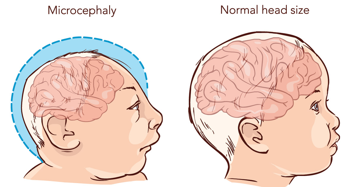 Baby with Microcephaly disease