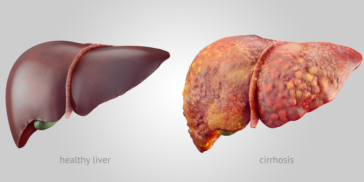 Health Liver and Unhealthy Liver